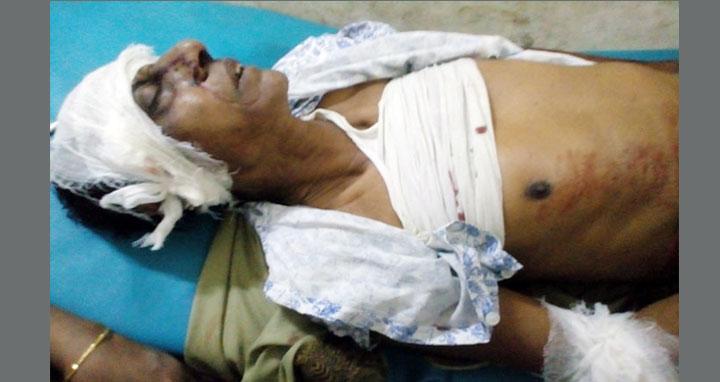 কুমিল্লার তিতাসে হত্যা মামলার বাদীকে কুপিয়ে জখম